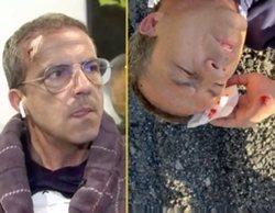 """Cristóbal Soria ('El Chiringuito'), a punto de morir en un accidente: """"El coche me pasó a 30 centímetros"""""""
