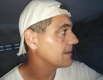 """Frank Cuesta, atacado por una garza: """"Directa al ojo. Intentas ayudar y te dan una hostia"""""""