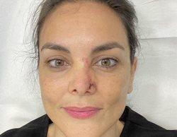 Mónica Carrillo revela que padece cáncer de piel