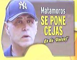 Kiko Matamoros vuelve a recurrir al quirófano, esta vez para ponerse cejas
