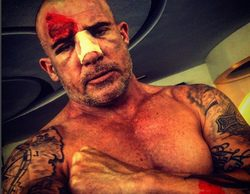 Brutal accidente de Dominic Purcell en el rodaje de la nueva temporada de 'Prison Break'