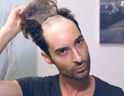 Miguel Vilas ('GH 17') estrena nueva imagen con una larga melena rizada en Instagram