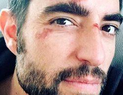 """Dani Mateo ('El intermedio') muestra una imagen con varios rasguños en la cara y confiesa: """"¡Qué torpe soy!"""""""