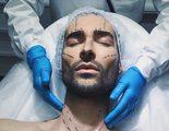 Miguel ('GH 17') se somete a una operación estética para rentabilizar su estilo de vida