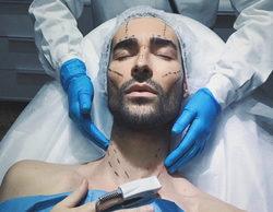 Miguel Vilas ('GH 17') muestra su sorprendente cambio tras su operación de cirugía