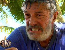 El cantante Francisco sufre la picadura de un gusano urticante en 'Supervivientes 2018'