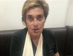 'Sálvame': Chelo García Cortés desata la ira de sus compañeros al ser pillada sin el cabestrillo
