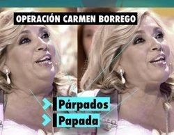 La reducción de papada y de párpados de Carmen Borrego habría costado 3.000 euros