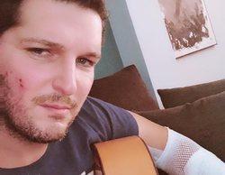 """Manu Tenorio explica en 'Viva la vida' el grave accidente que sufrió: """"Me dio un fogonazo y salí despedido"""""""