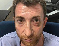 """Pablo Motos acaba con el ojo morado tras recibir un fuerte puñetazo: """"A veces te pegan una hostia"""""""