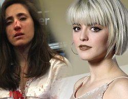Alba Reche denuncia la agresión homófoba de Londres y confiesa haber sido víctima también