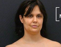 Miriam Sánchez muestra su espectacular cambio físico tras someterse a una cirugía