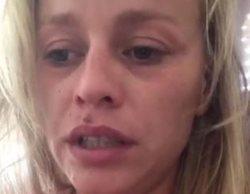"""Tatiana ('GH 11)' denuncia una agresión de su exmarido: """"Ha entrado por el balcón y me ha pegado una paliza"""""""