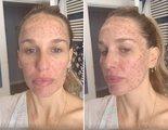 Carola Baleztena ('Nada es para siempre') denuncia un tratamiento estético que le ha abrasado el rostro