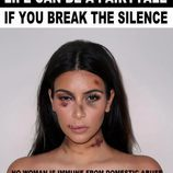 "Kim Kardashian golpeada para ""Break the Silence"""