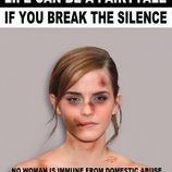 "Emma Watson golpeada para ""Break the silence"""