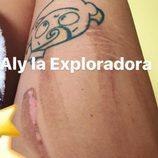Alyson Eckmann sorprende en las redes con su herida