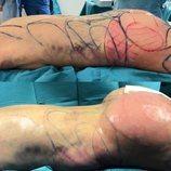 El culo de Leticia Sabater, antes y después de su operación