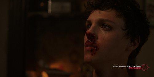 Marcos Sotkovszki, sangrando en 'Veneno'