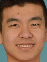 Yong Li