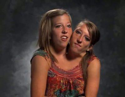 Abigail y Brittany Hensel, las gemelas siamesas en las que se inspira 'American Horror Story: Freak Show'